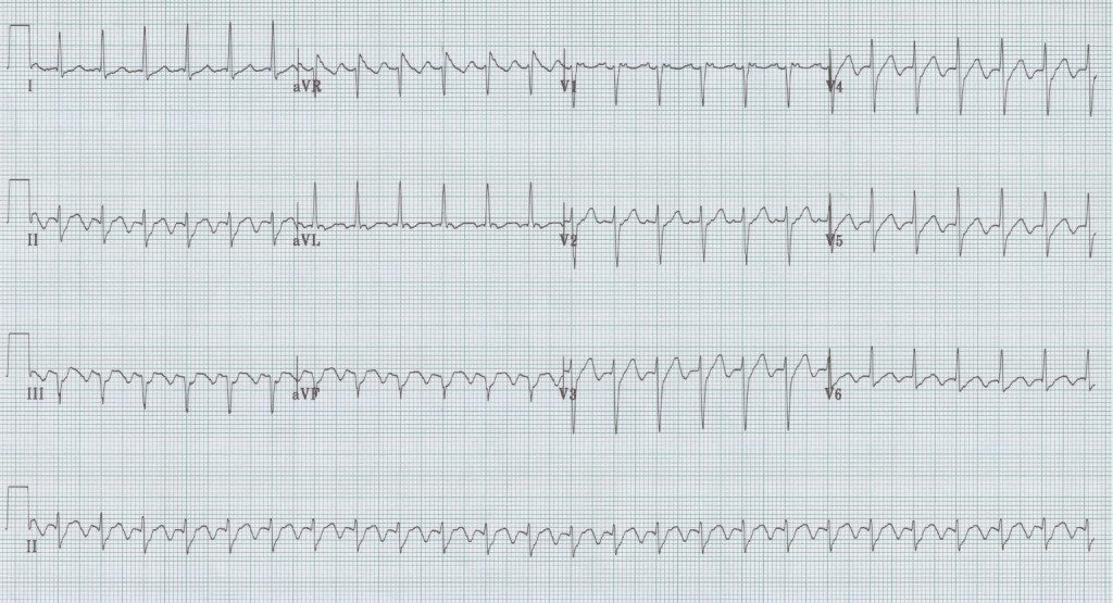 03 - 2to1 atrial flutter