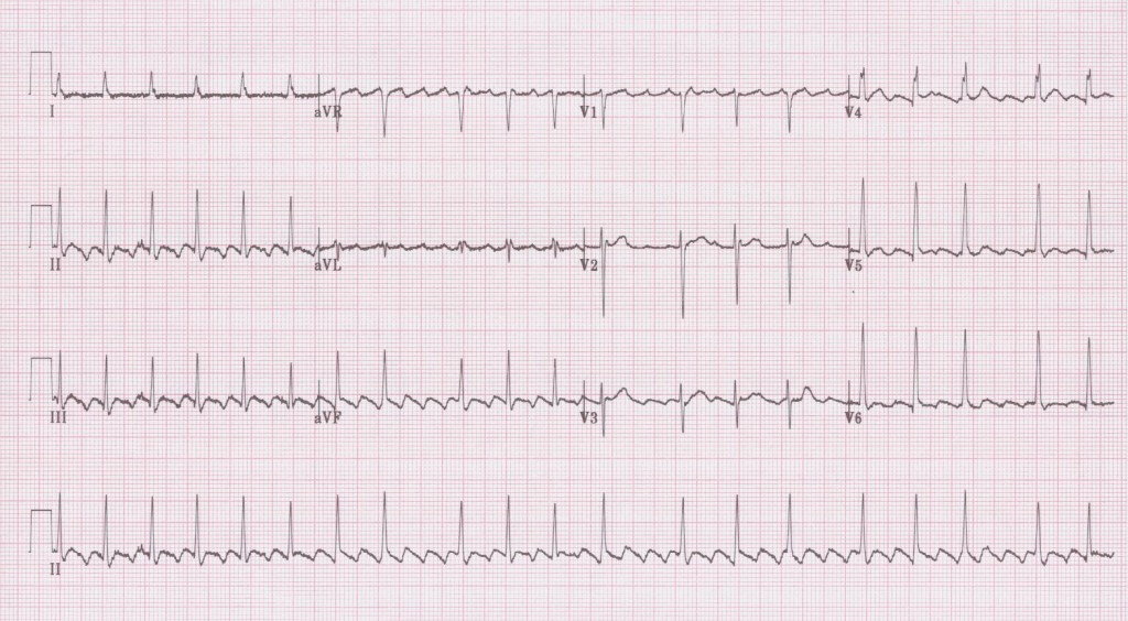 04 - Atrial flutter with variable block