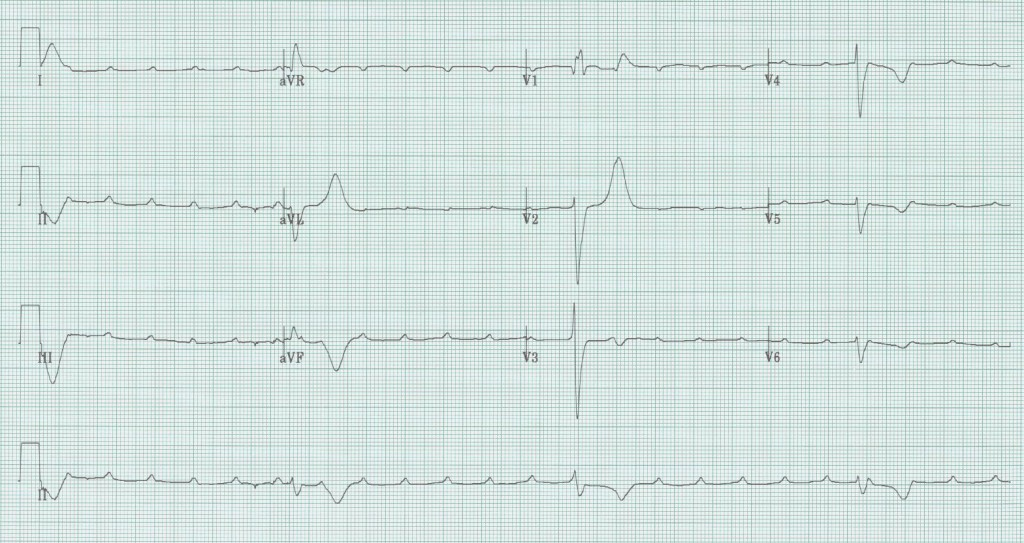 08 - Complete heart block