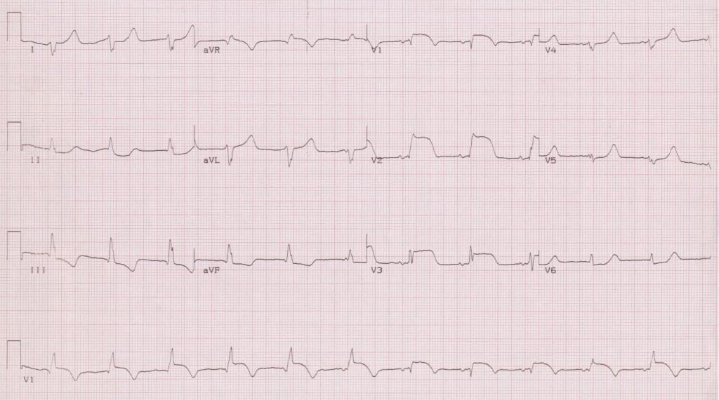 12 - AIVR (accelerated idioventricular rhythm)