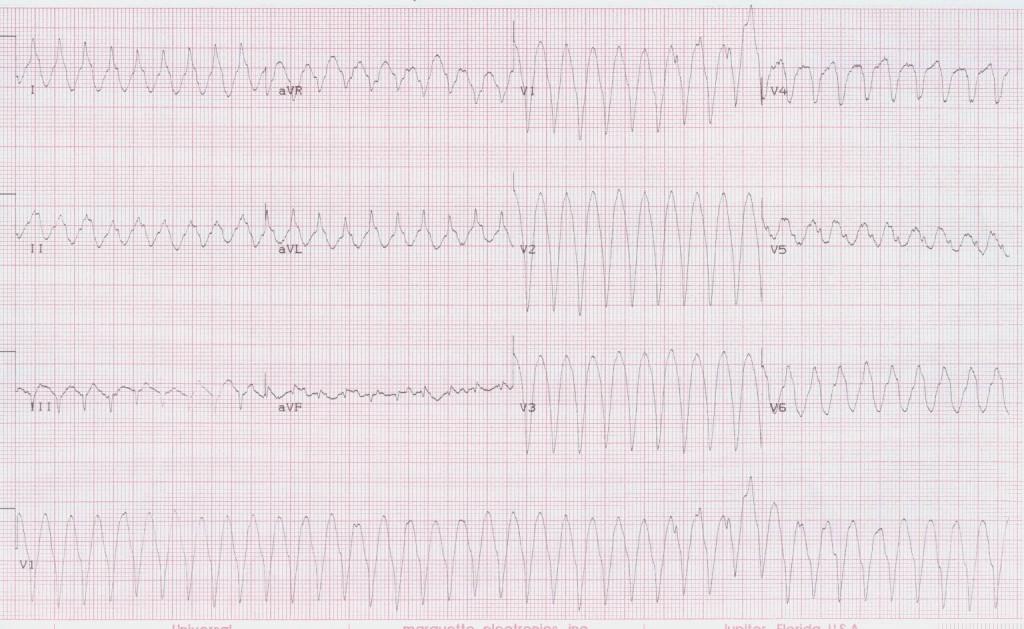 14 - Ventricular tachycardia