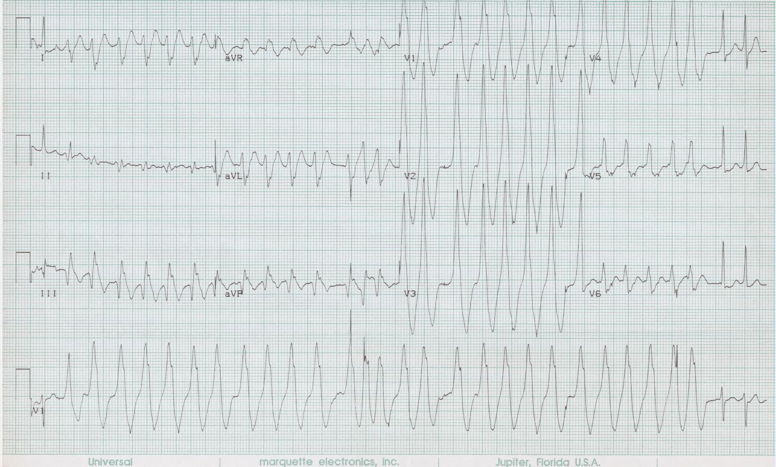 18 - Atrial fib via bypass tract (WPW)