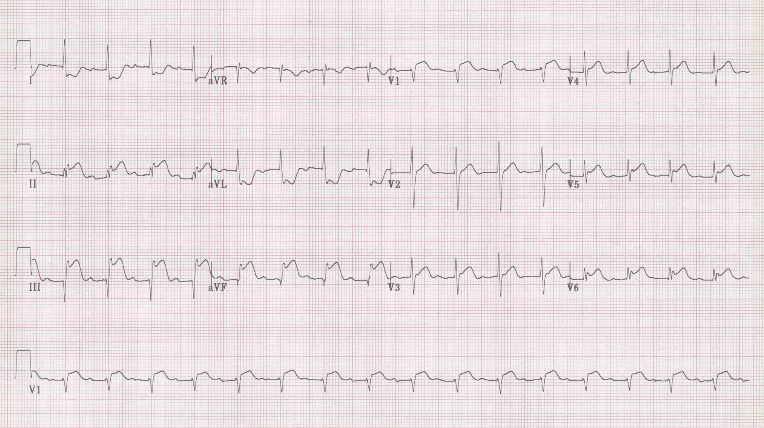 26 - Inferior STEMI with RV infarct