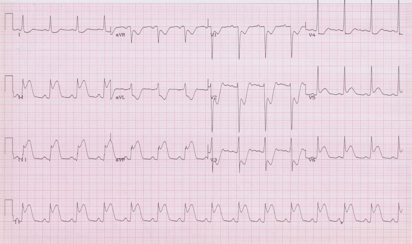 27 - Acute inferior-posterior MI