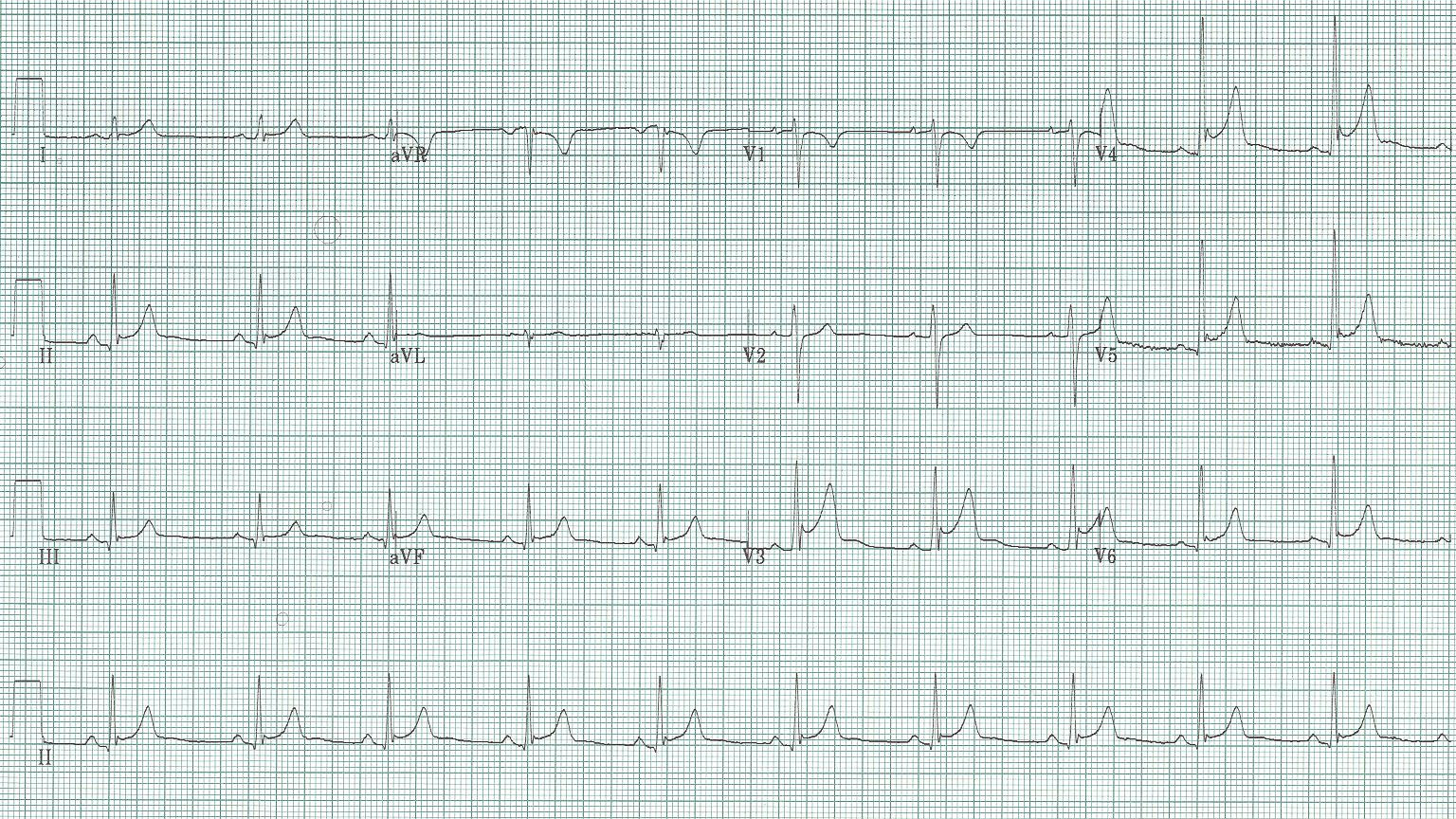 30 - Benign early repolarization