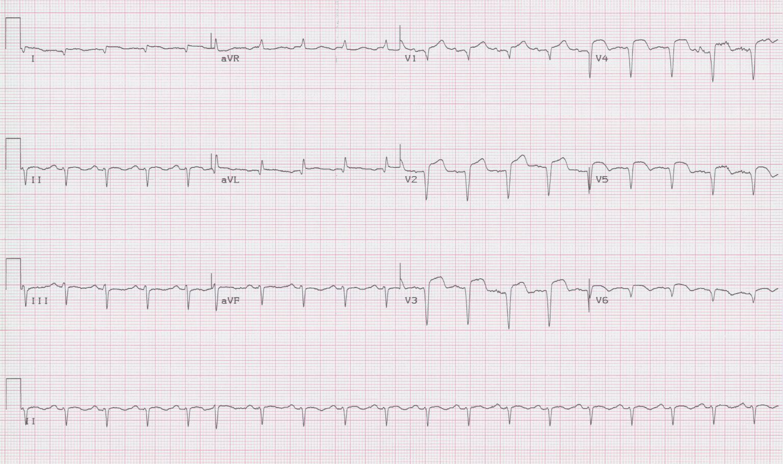 32 - Ventricular aneurysm
