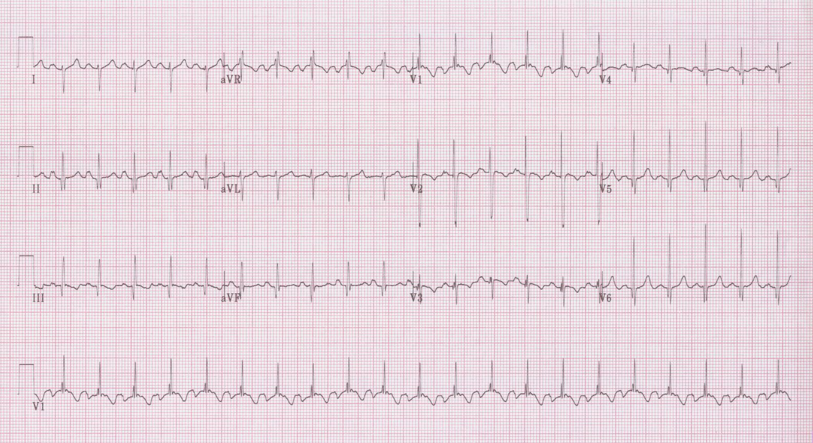 38 - Right ventricular hypertrophy (mitral stenosis)