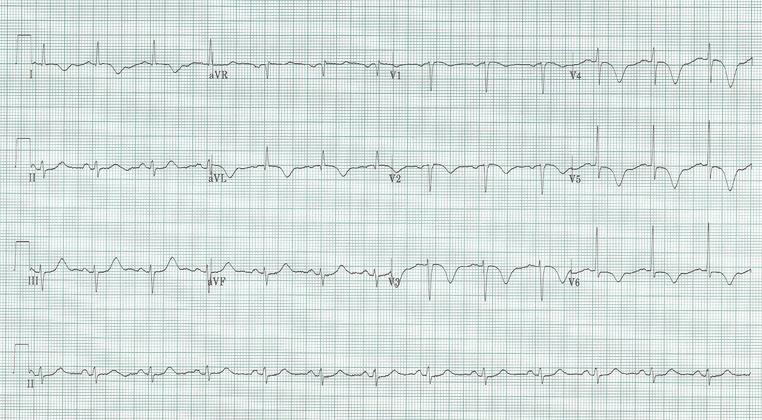 45 - Takotsubo cardiomyopathy