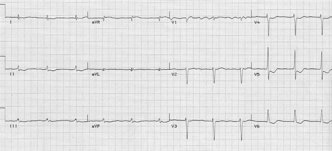EKG of the Week #1