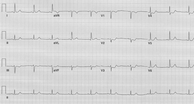 EKG of the Week #2