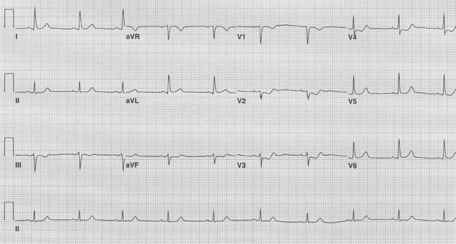 EKG of the Week #2
