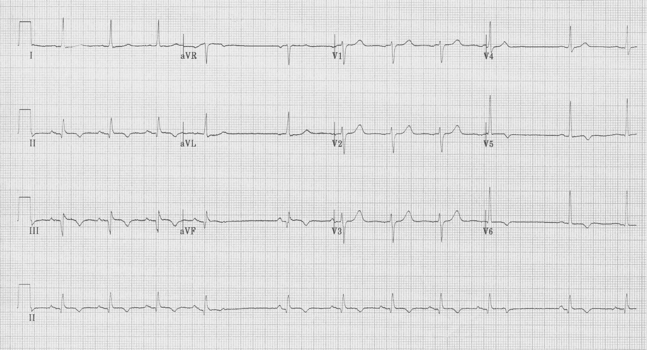 EKG of the Week #3