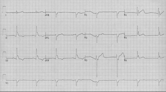 EKG fo the week #4