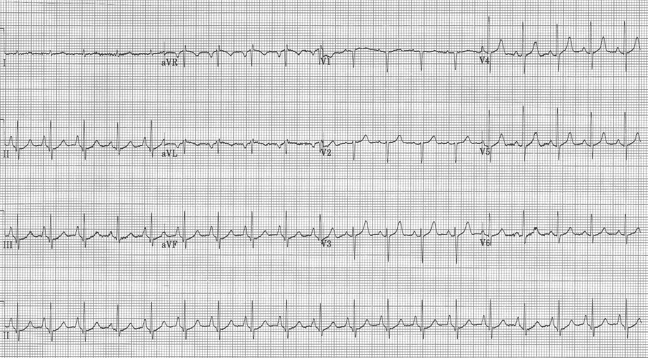 EKG #5