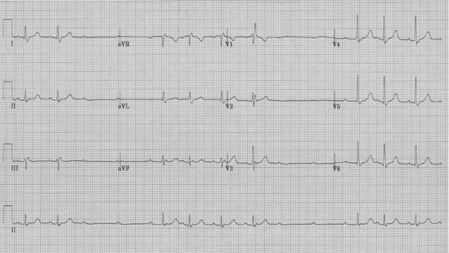 EKG15